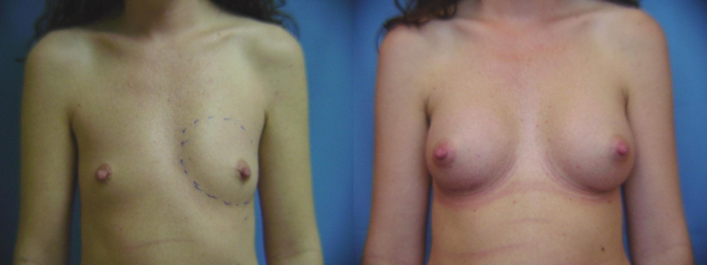 Breast Augmentation Case 45 Before & After View #1 | Birmingham, AL | Dr. Michael S. Beckenstein