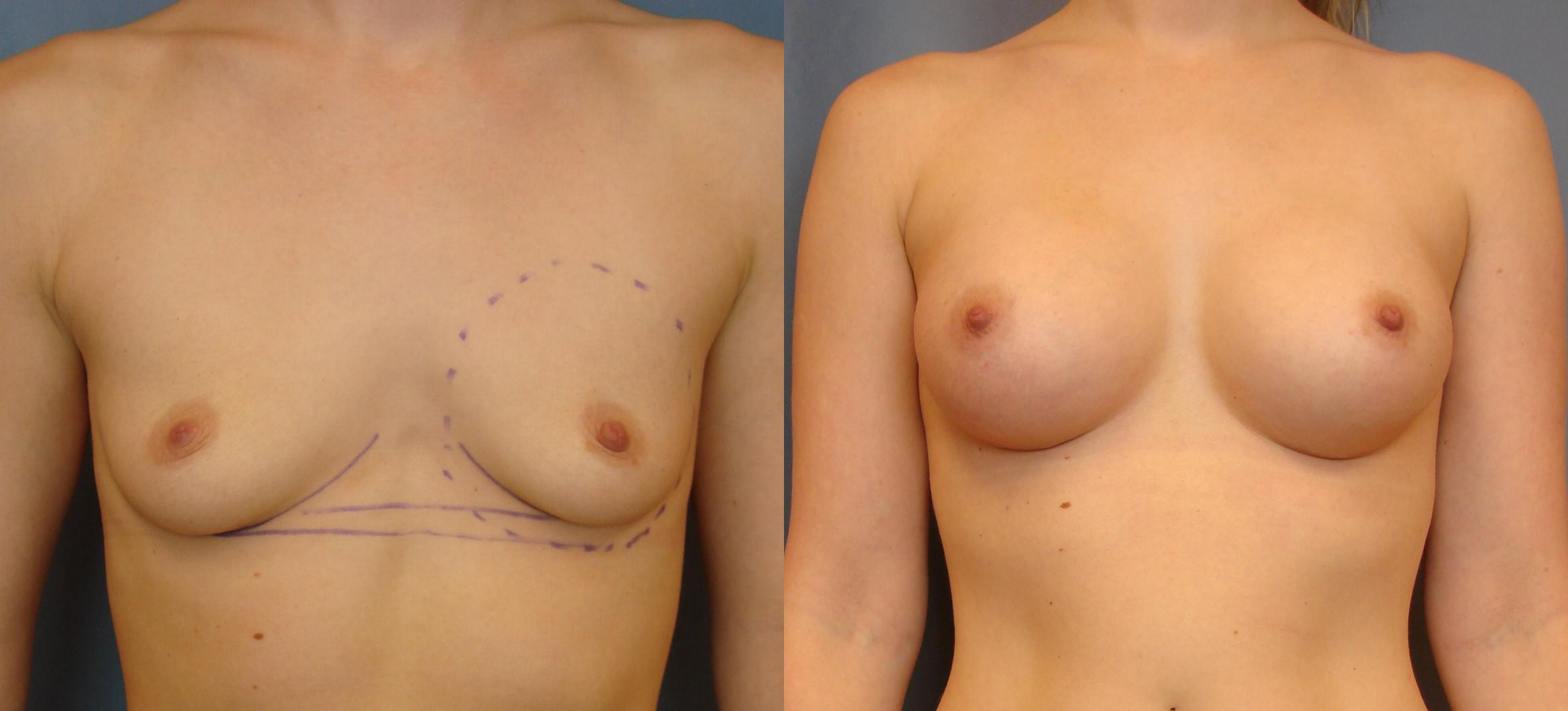 Breast Augmentation Case 68 Before & After View #1 | Birmingham, AL | Dr. Michael S. Beckenstein
