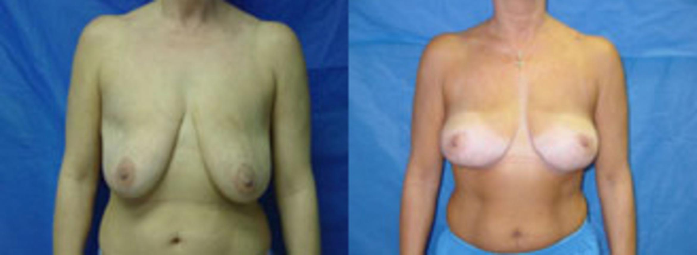 Breast Lift Case 19 Before & After View #1 | Birmingham, AL | Dr. Michael S. Beckenstein