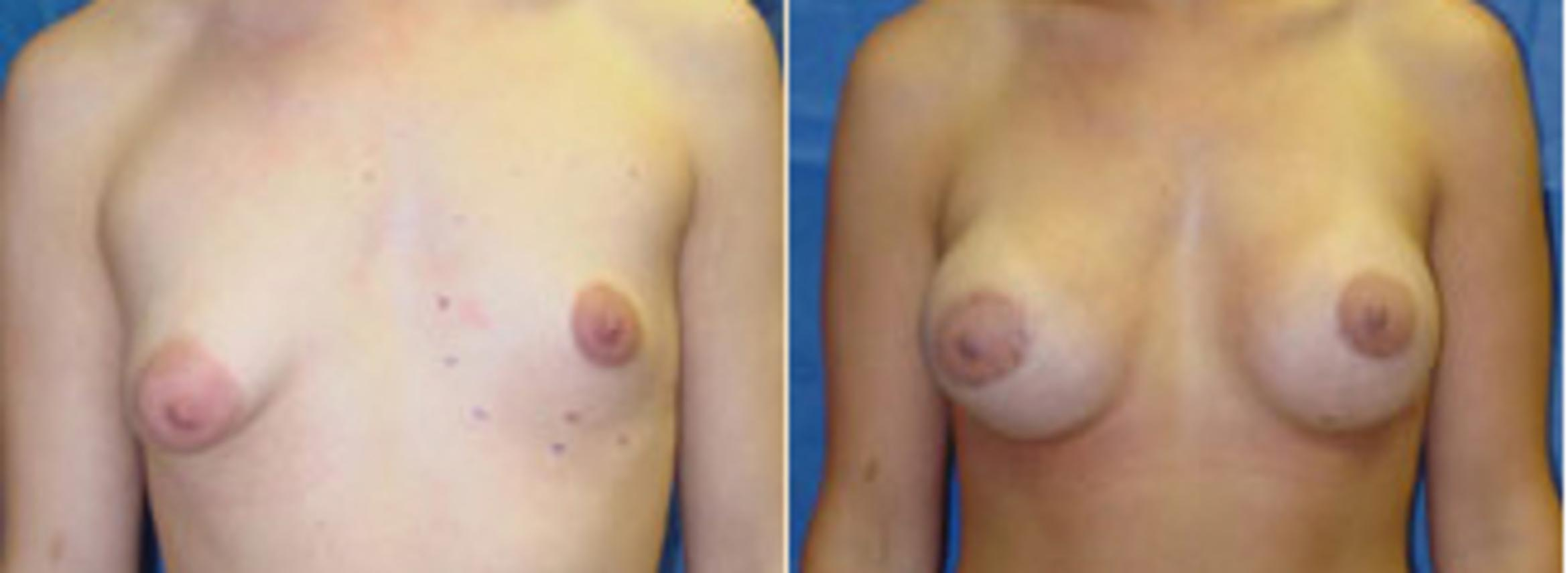 Breast Lift Case 9 Before & After View #1 | Birmingham, AL | Dr. Michael S. Beckenstein