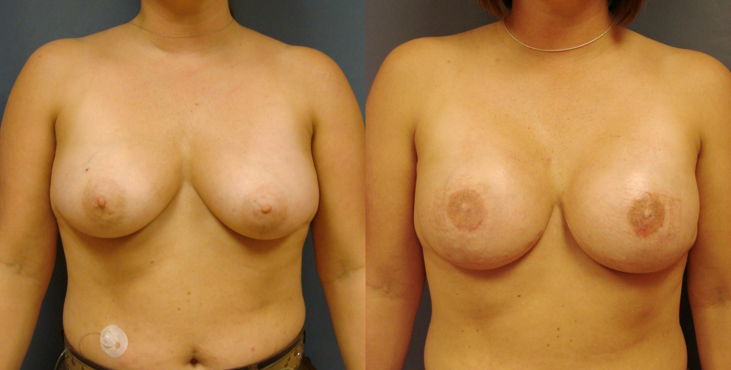 Breast Reconstruction Case 52 Before & After View #1 | Birmingham, AL | Dr. Michael S. Beckenstein