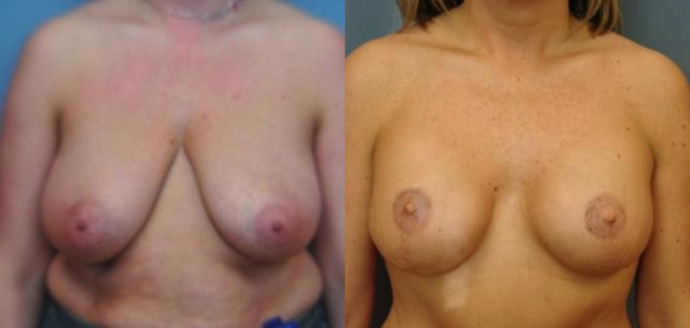 Breast Reconstruction Case 54 Before & After View #1 | Birmingham, AL | Dr. Michael S. Beckenstein