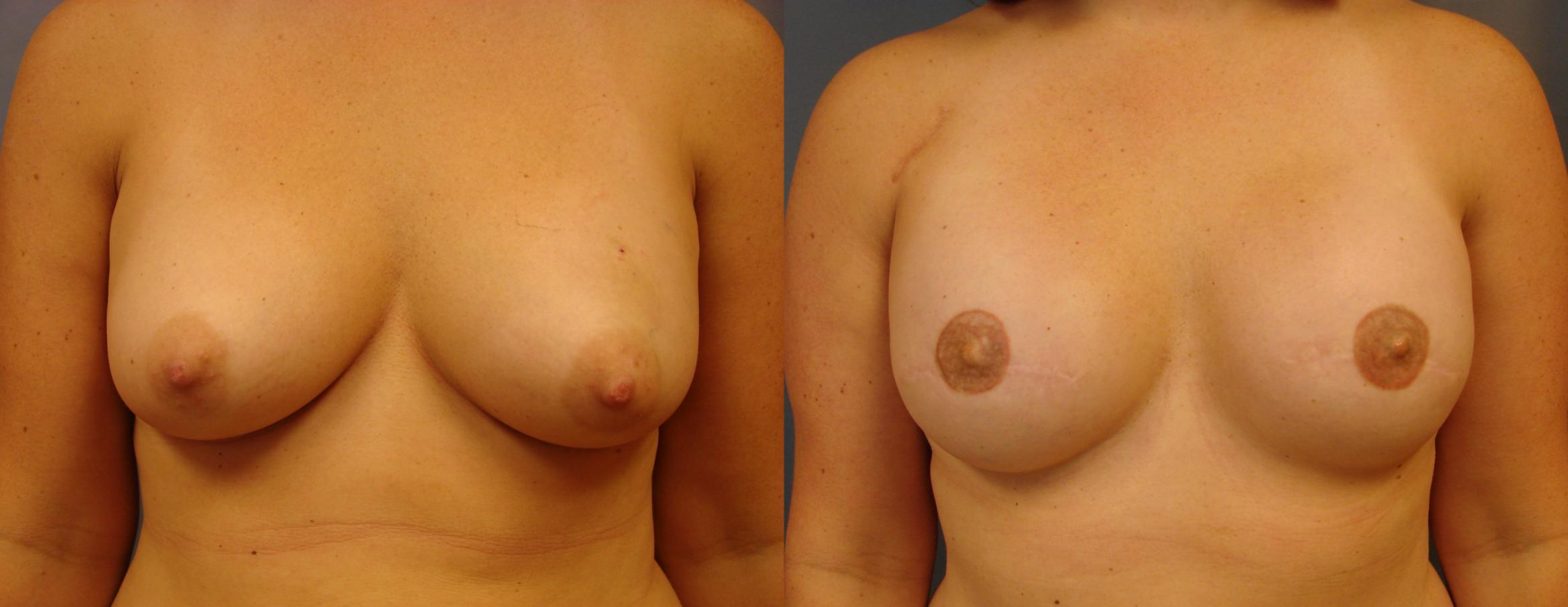 Breast Reconstruction Case 61 Before & After View #1 | Birmingham, AL | Dr. Michael S. Beckenstein