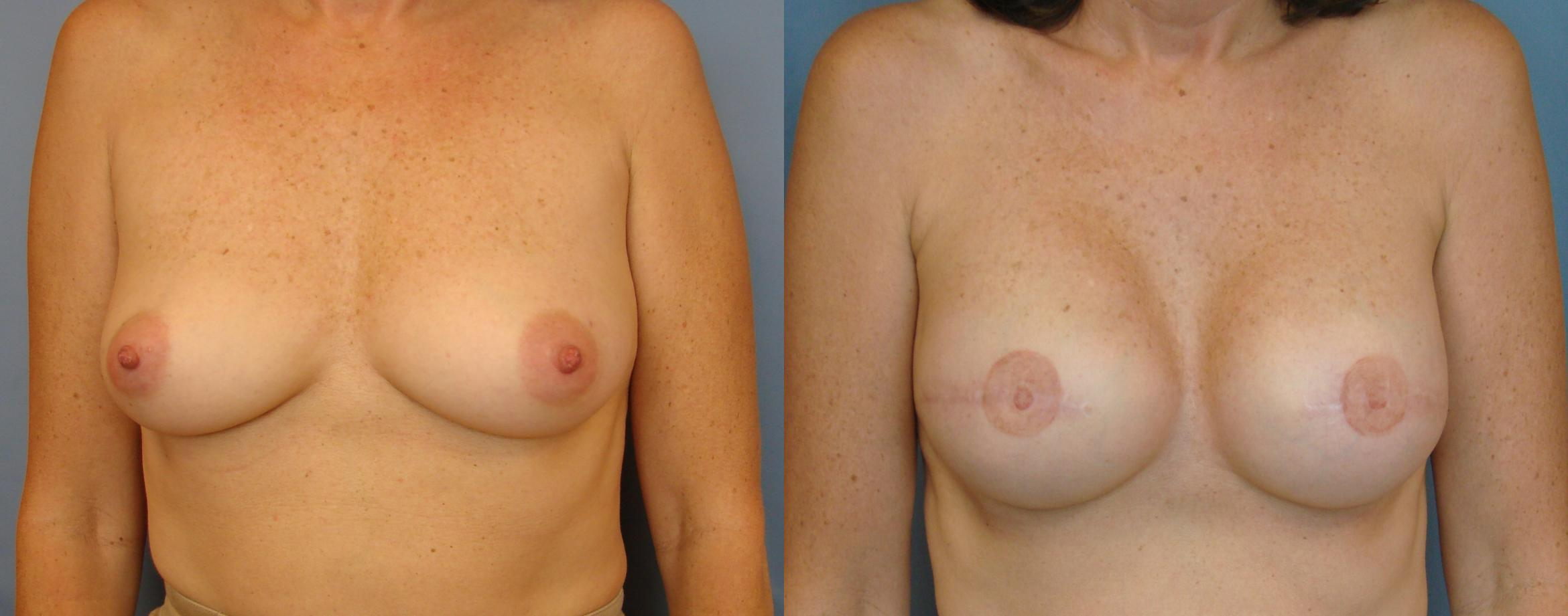 Breast Reconstruction Case 75 Before & After View #1 | Birmingham, AL | Dr. Michael S. Beckenstein