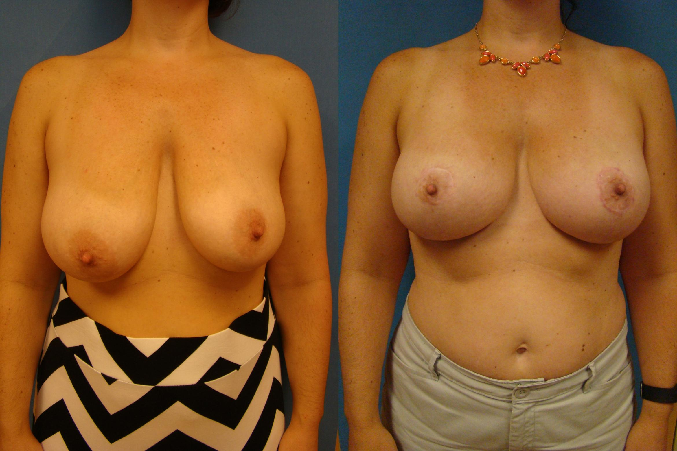 Breast Reconstruction Case 88 Before & After View #1 | Birmingham, AL | Dr. Michael S. Beckenstein