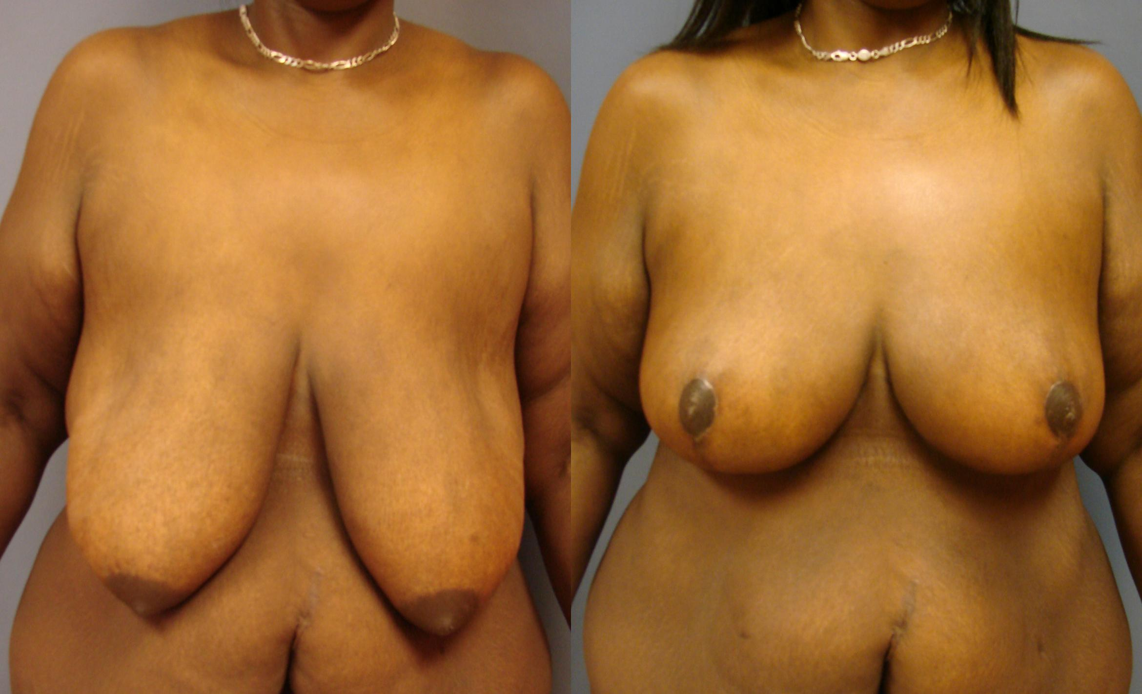 Breast Reduction Case 67 Before & After View #1 | Birmingham, AL | Dr. Michael S. Beckenstein