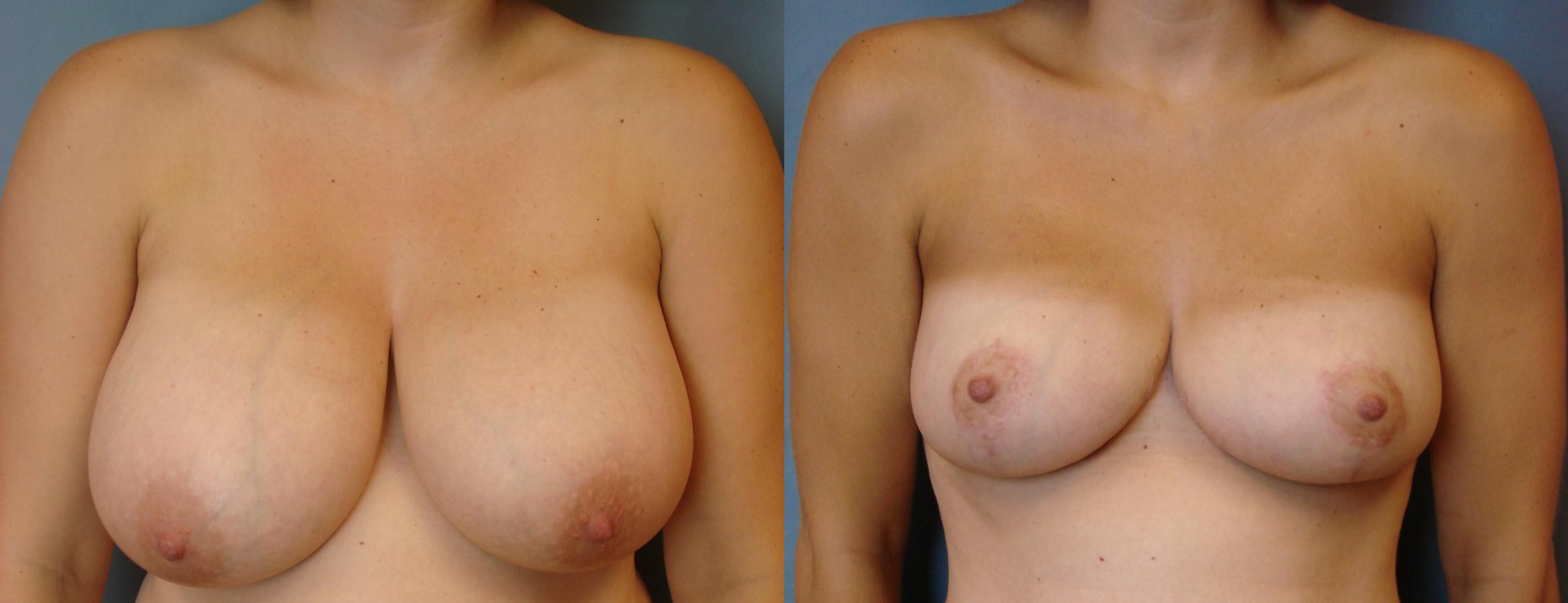 Breast Reduction Case 81 Before & After View #1 | Birmingham, AL | Dr. Michael S. Beckenstein