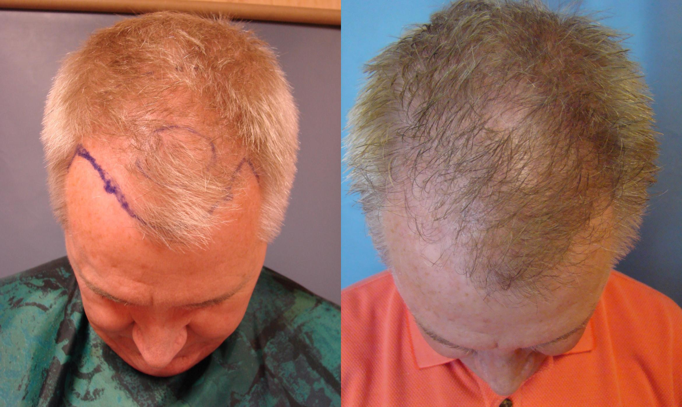 Neograft Hair Replacement Case 83 Before & After View #1 | Birmingham, AL | Dr. Michael S. Beckenstein