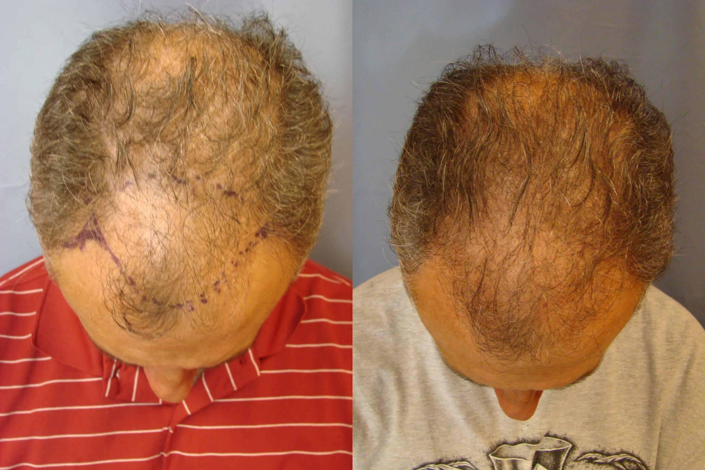 Neograft Hair Replacement Case 84 Before & After View #1 | Birmingham, AL | Dr. Michael S. Beckenstein