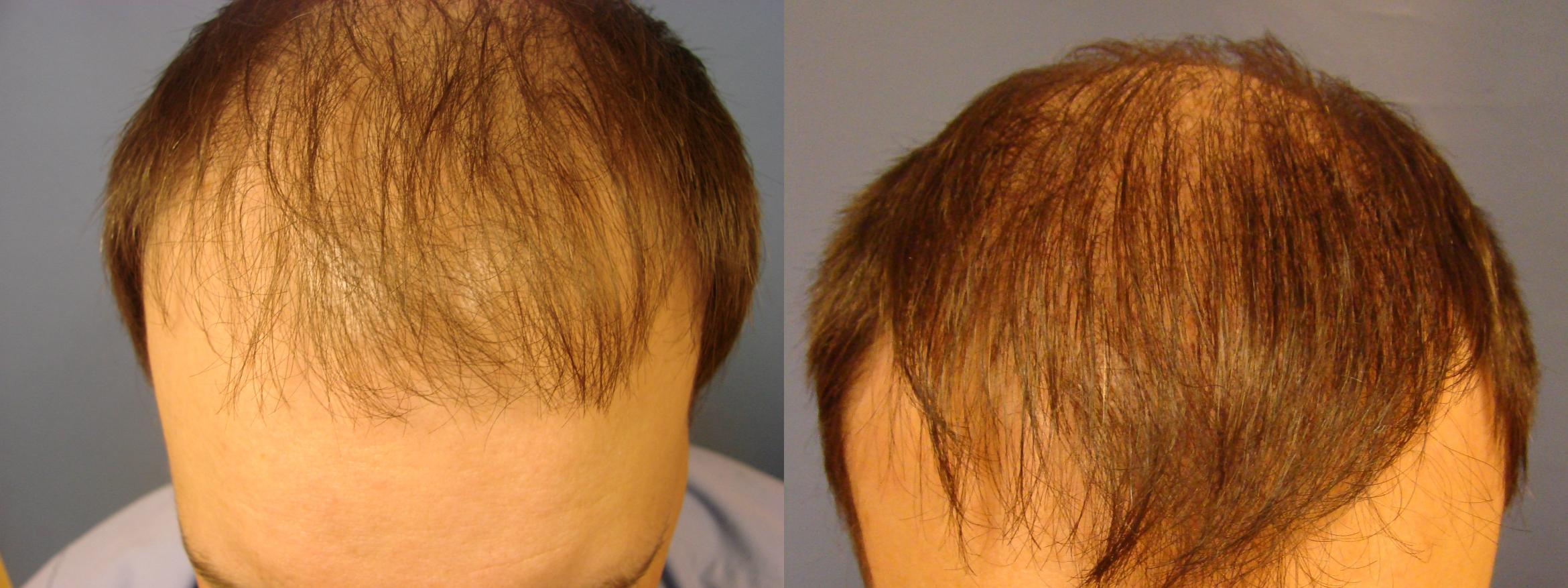 Neograft Hair Replacement Case 86 Before & After View #1 | Birmingham, AL | Dr. Michael S. Beckenstein