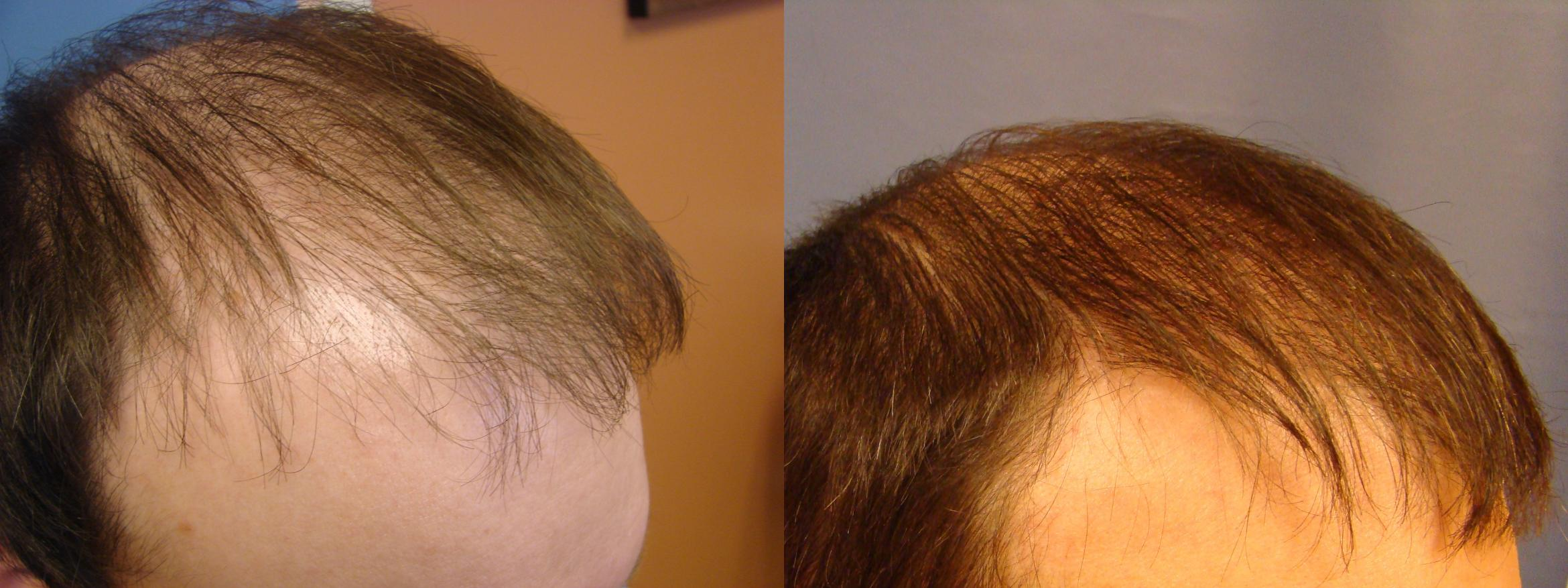 Neograft Hair Replacement Case 86 Before & After View #2 | Birmingham, AL | Dr. Michael S. Beckenstein