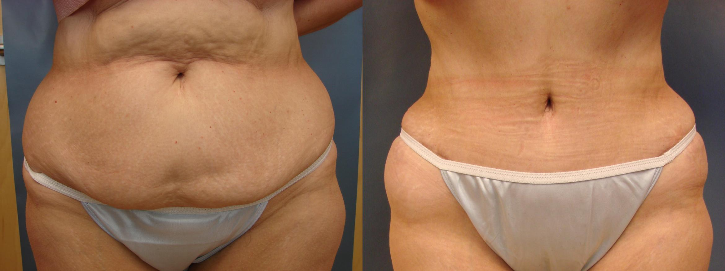Tummy Tuck Case 38 Before & After View #1 | Birmingham, AL | Dr. Michael S. Beckenstein