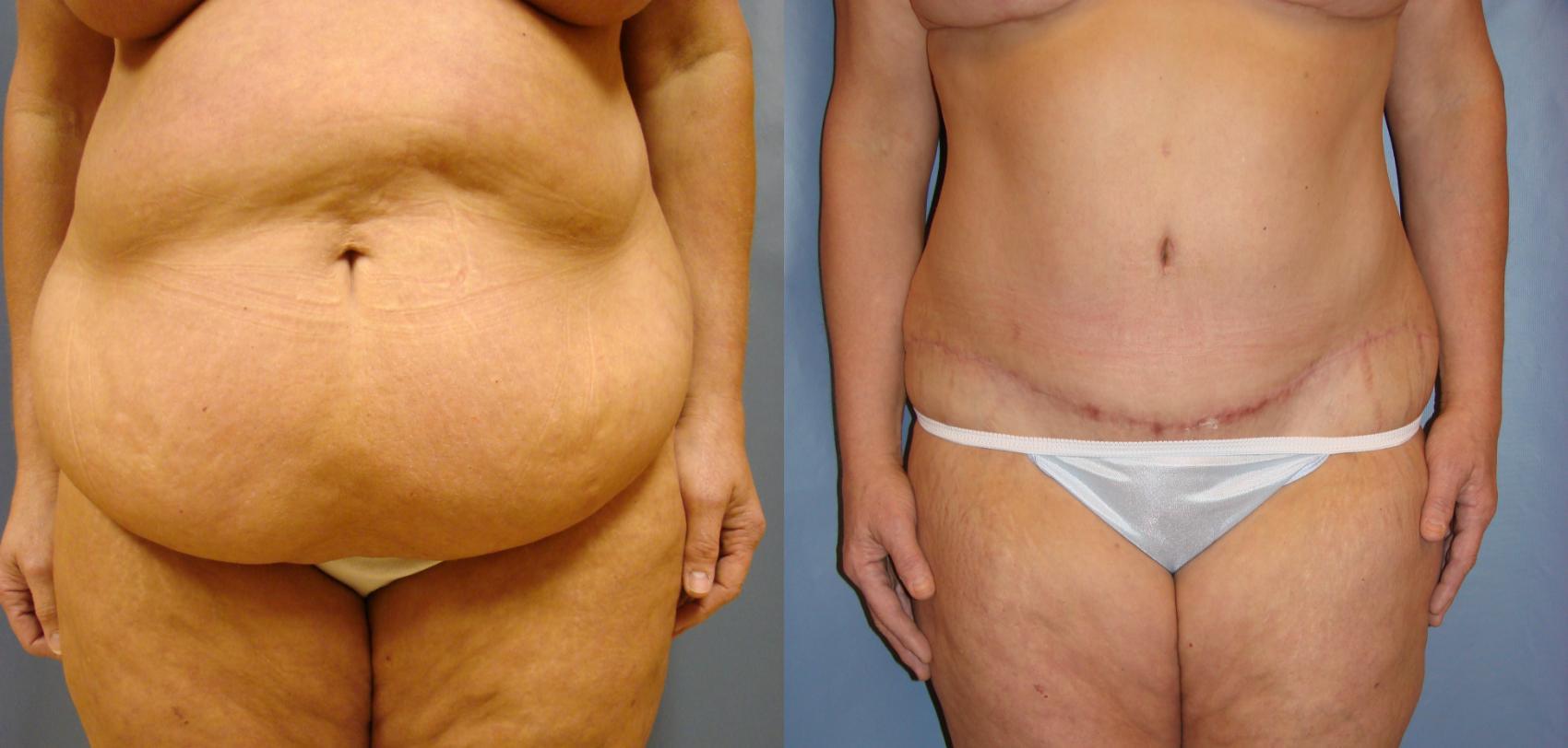 Tummy Tuck for Birmingham & Montgomery, AL   Dr. Michael Beckenstein